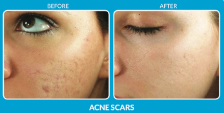 Acne Scar Treatment with SkinPen