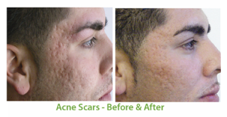 Acne Treatment with SkinPen in Florida