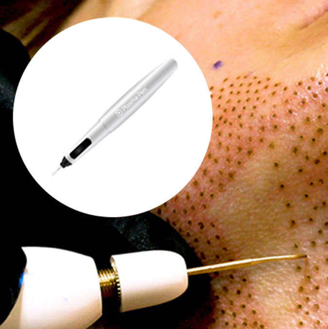 You are currently viewing Fibroblast Skin Tightening