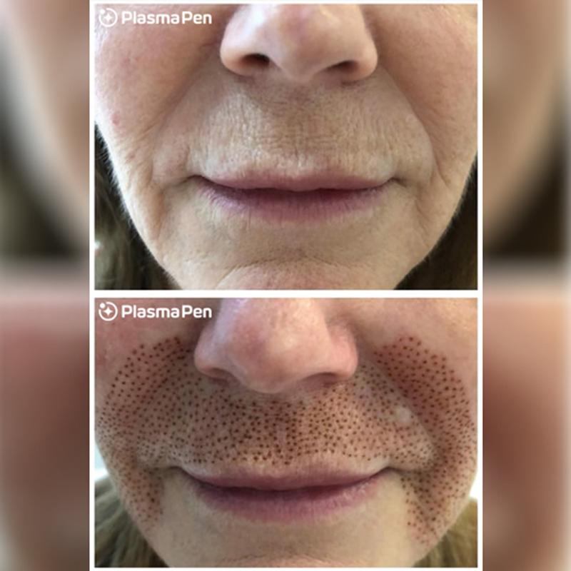 Fibroblast Skin Tightening