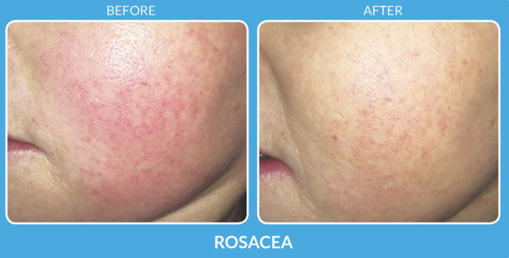 Rosacea Treatment with SkinPen