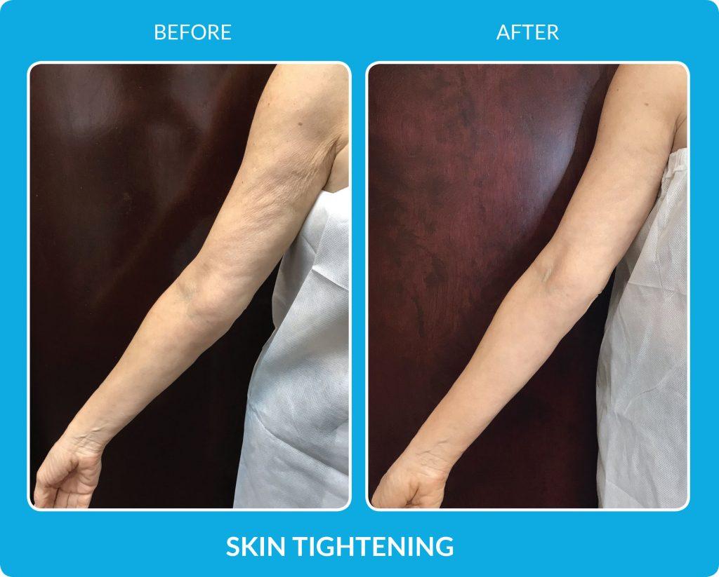 Skin Tightening with SkinPen