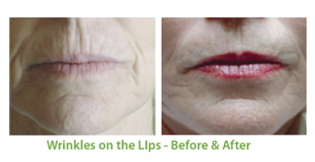Wrinkle Treatment with SkinPen in Florida