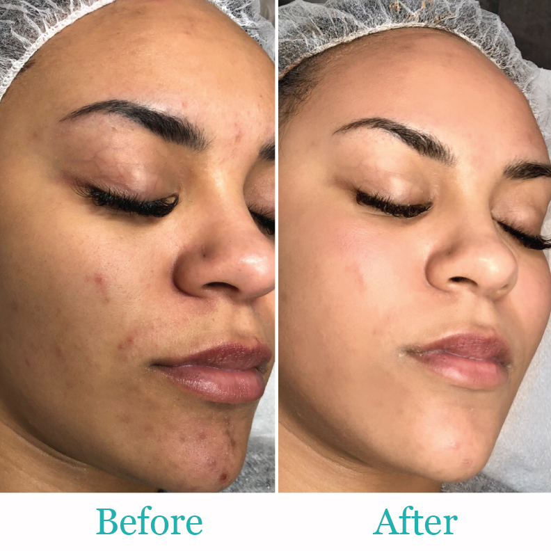 BB Glow Treatment in Florida