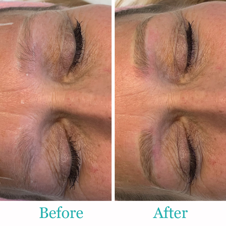 Permanent Make up Before and After