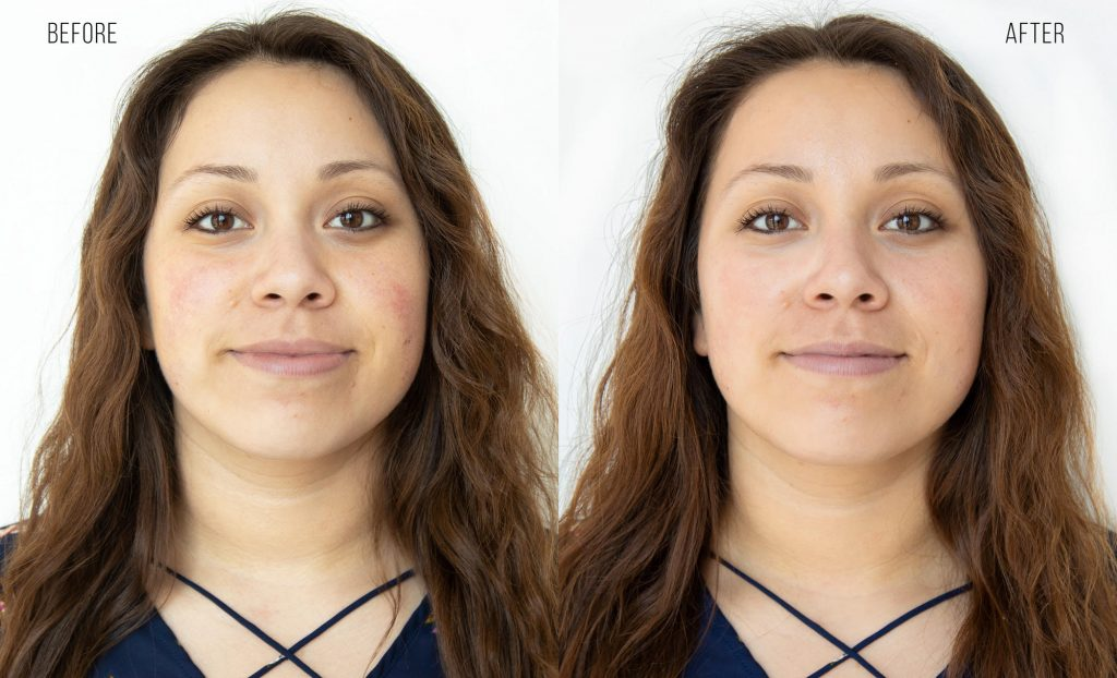 Before and After Hydrafacial Treatment