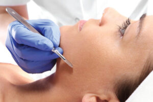 Skincare Benefits and Treatments of Dermaplaning